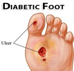 diabetessår